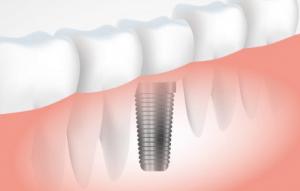 Dental Implants Yorba Linda