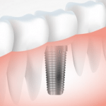 Dental Implants yorba linda
