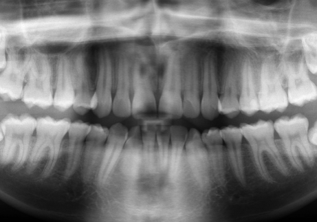 Dental X-Ray Yorba Linda